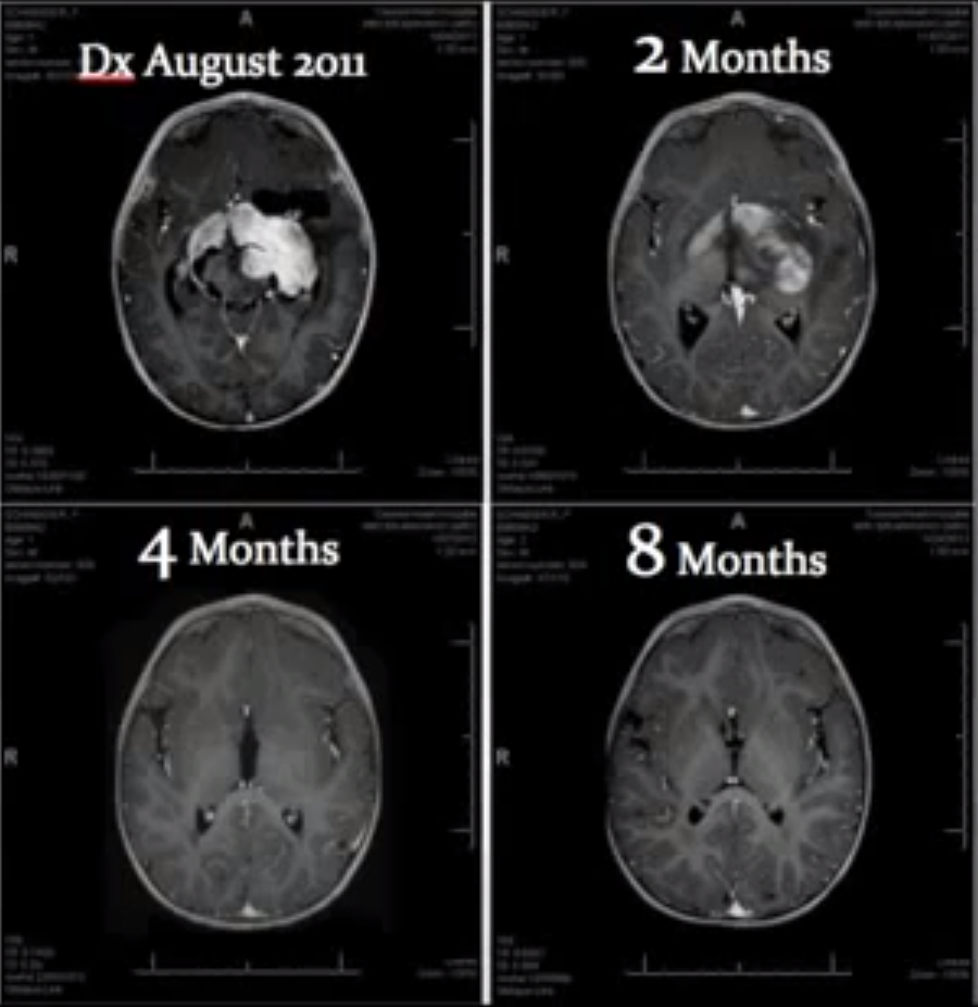 Cannabis For Infant S Brain Tumor Doctor Calls Child Quot A